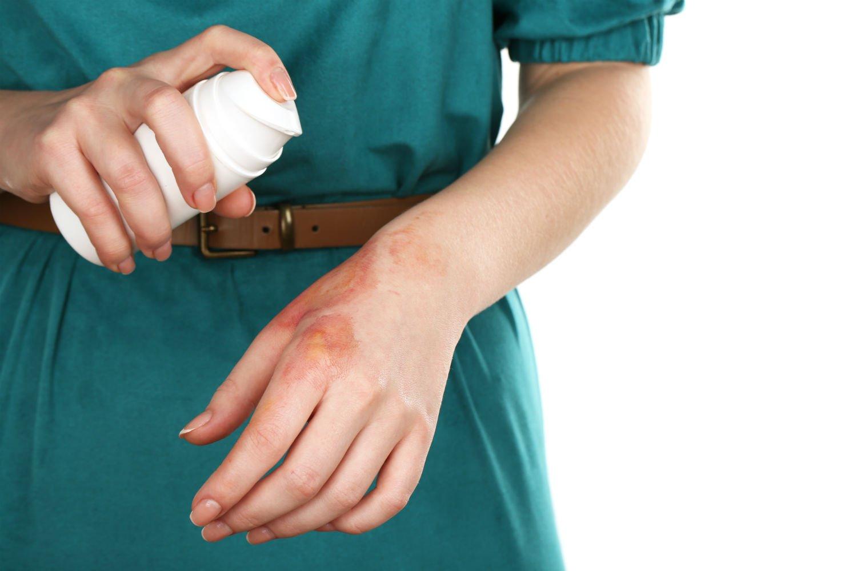 Pierwsza pomoc oparzenia. Co na blizny po oparzeniach