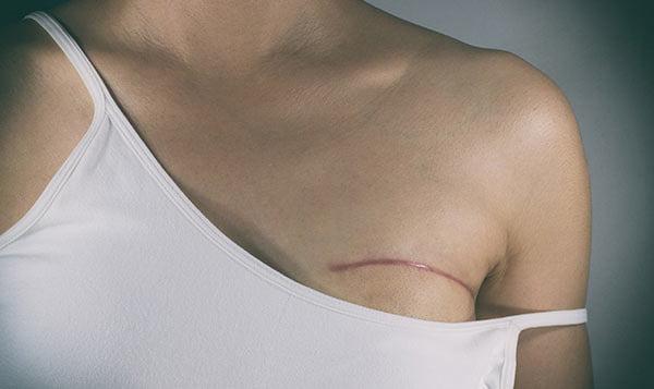 Blizna po mastektomii. Co stosować na bliznę po mastektomii. Jak zmniejszyć widoczność blizny. Contractubex