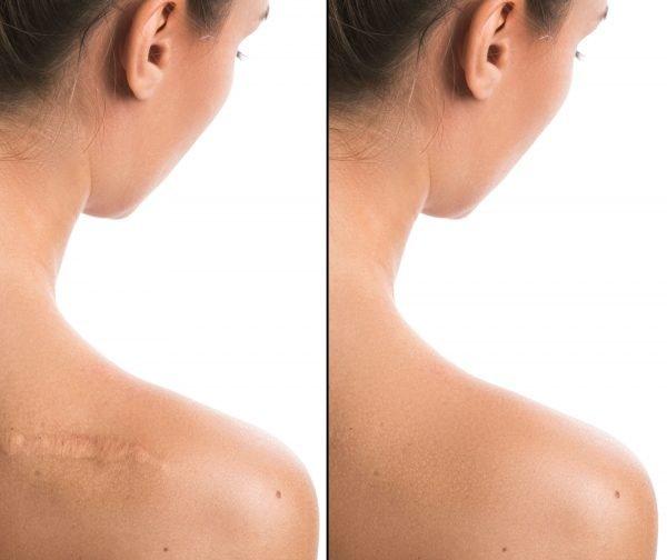 Blizna na ramieniu przed i po. Zmniejszenie widoczności blizny. Co na blizny. Contractubex