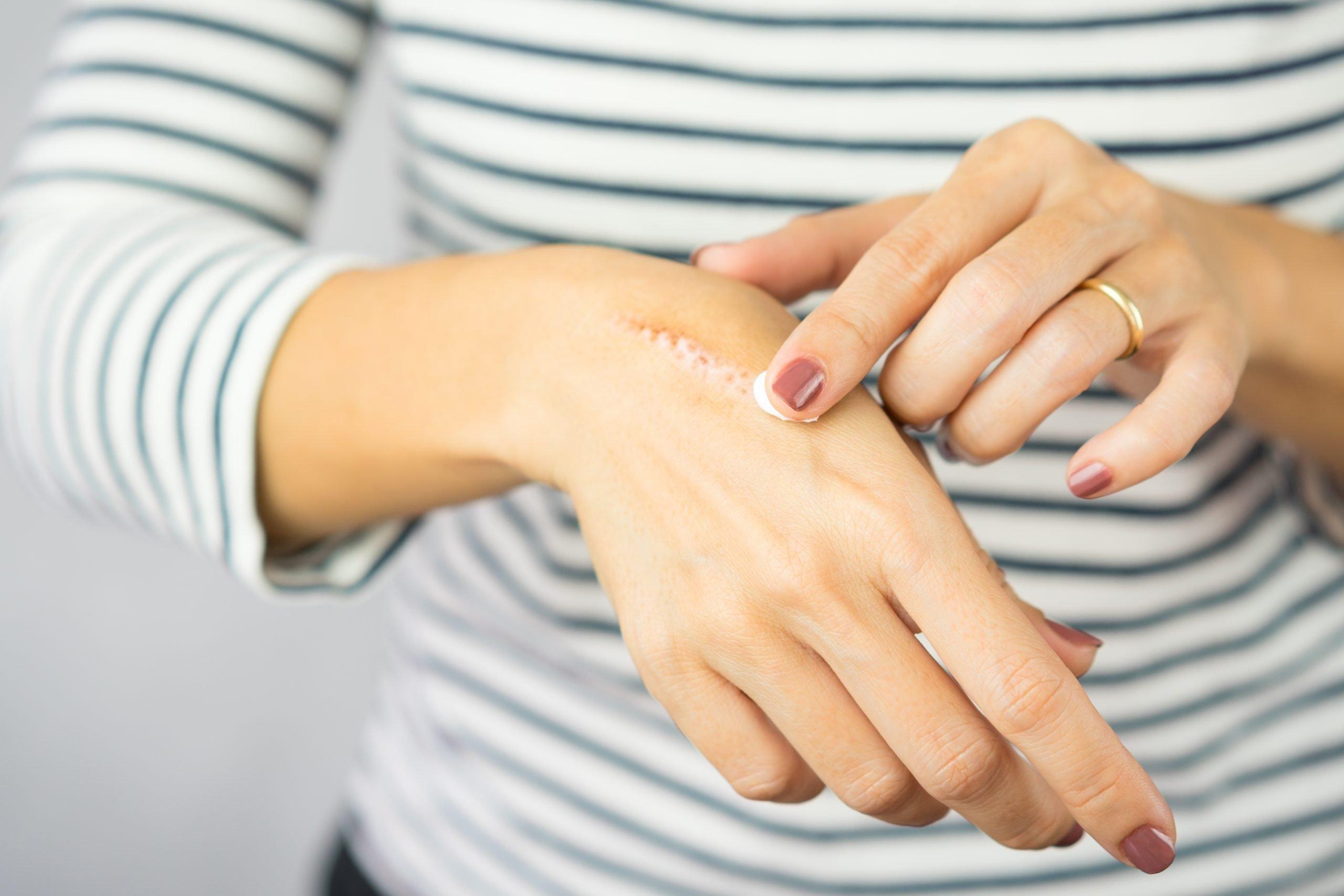 Co używać na blizny na rękach. Co dobre na blizny, co działa zmniejszy widoczność blizny. Contractubex