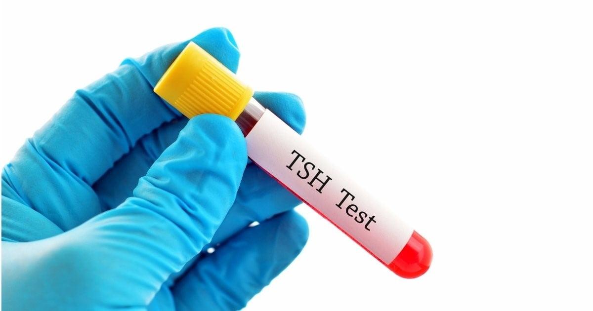 kontrola poziomu TSH po operacji usunięcia tarczycy