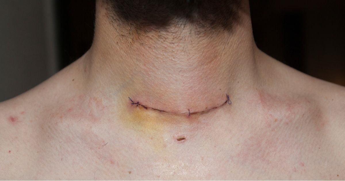 blizna po operacji tarczycy - jak wygląda