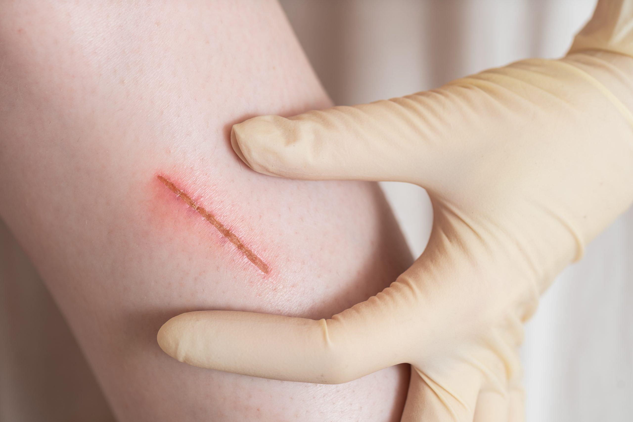rana na ręce, leczenie blizny, co stosować na blizny