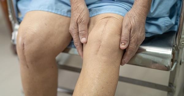 blizna na kolanie