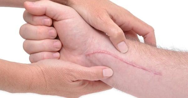 jak dbać o bliznę po oparzeniu