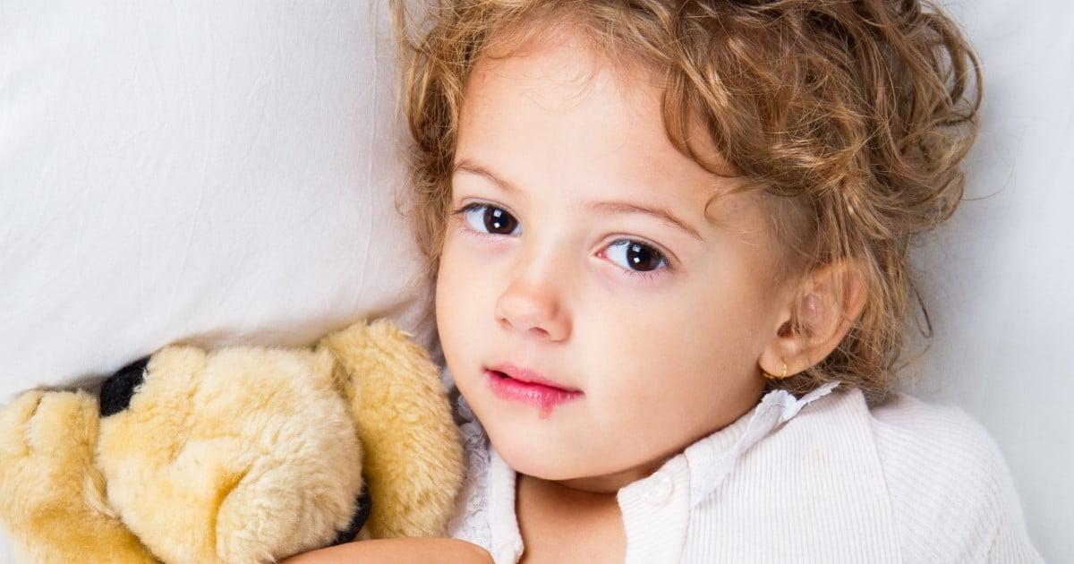 Blizna po opryszczce - opryszczka na wardze u dziecka