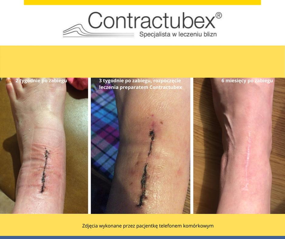 efekt stosowania żelu Contactubex na blizny