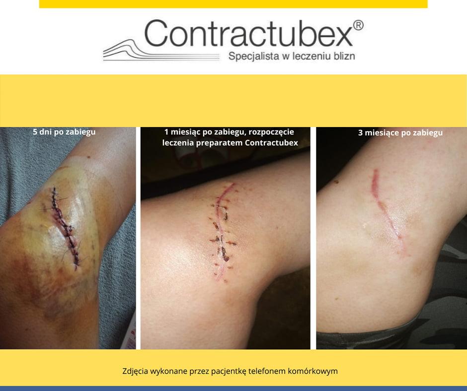 efekty stosowanie żelu Contactubex